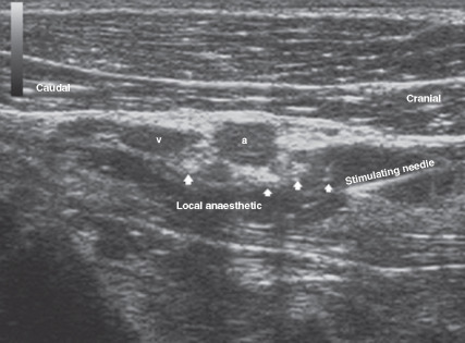 ultrasound-guided approach for axillary brachial plexus, femoral, Muscles